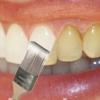 Albirea dinților în condiții casnice! Un zâmbet de milioane într-o singură zi!